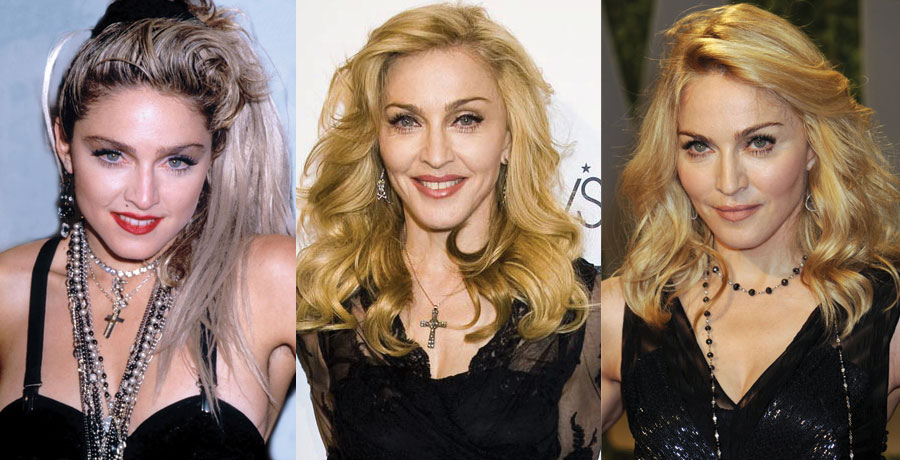 Madonna Plastic Surgery Before and After 2021
