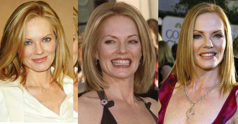 Marg Helgenberger Plastic Surgery Before and After 2020