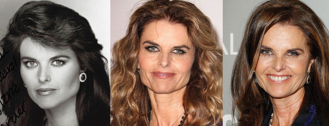 Maria Shriver Plastic Surgery Before and After 2020