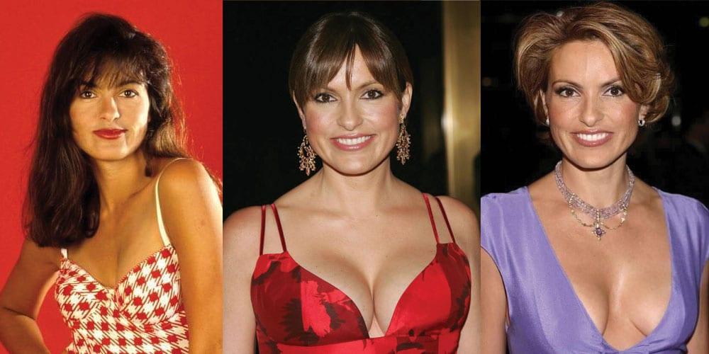 Mariska Hargitay Plastic Surgery Before and After 2021