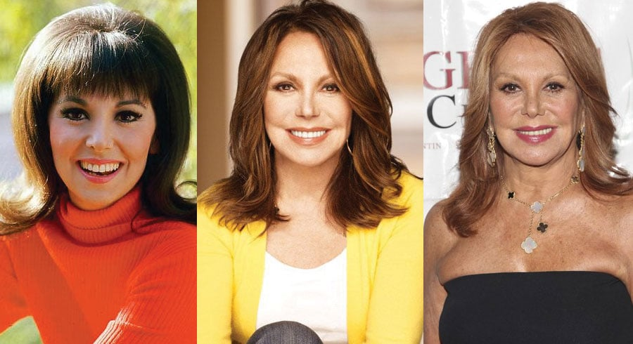 Marlo Thomas Plastic Surgery Before and After 2021