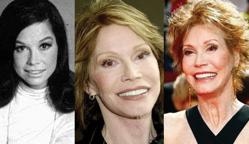 Mary Tyler Moore Plastic Surgery Before and After 2021