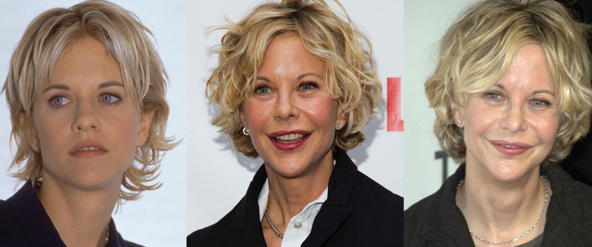 Meg Ryan Plastic Surgery Before and After 2021