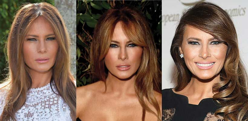 Melania Trump Plastic Surgery Before and After 2020