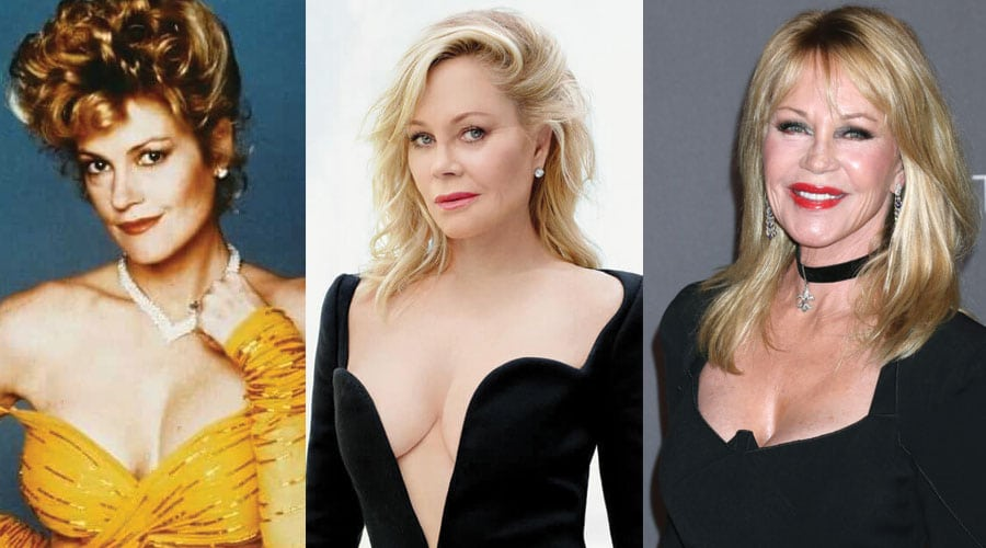 Melanie Griffith Plastic Surgery Before and After 2021