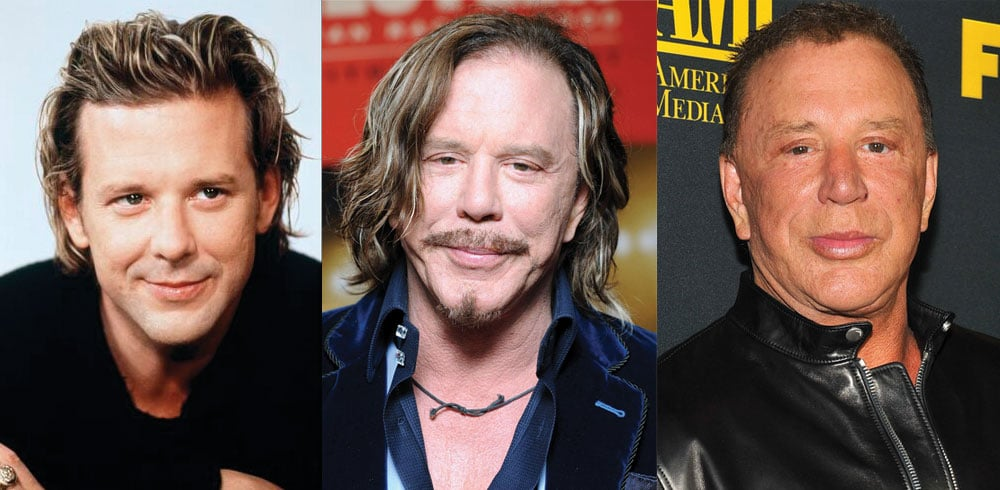 Mickey Rourke Plastic Surgery Before and After 2020