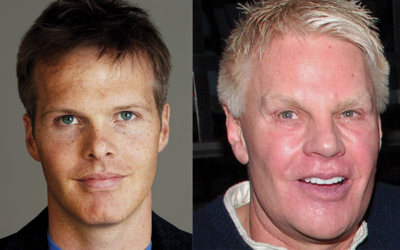 Mike Jeffries Plastic Surgery Before and After 2021