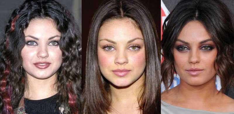 Mila Kunis Plastic Surgery