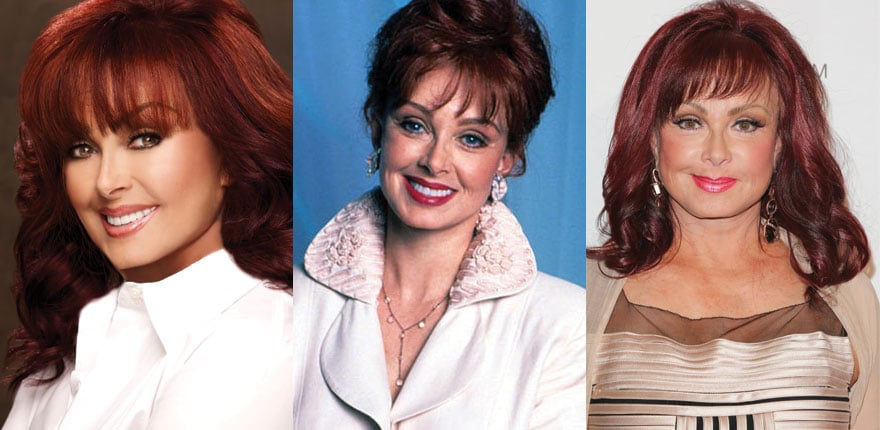Naomi Judd Plastic Surgery Before and After 2021