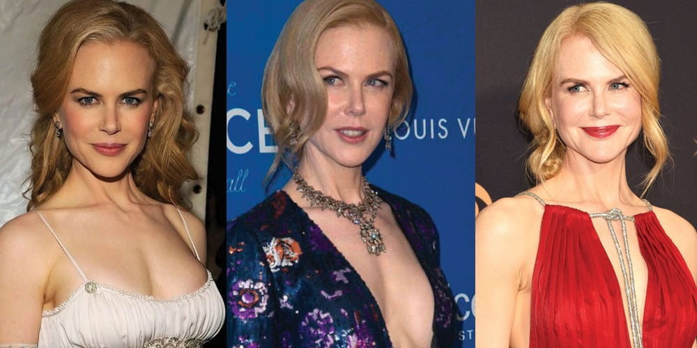 Nicole Kidman Plastic Surgery Before and After 2021