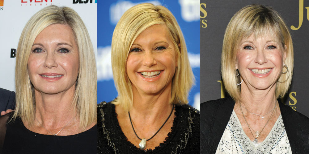 Olivia Newton John Plastic Surgery Before and After 2020