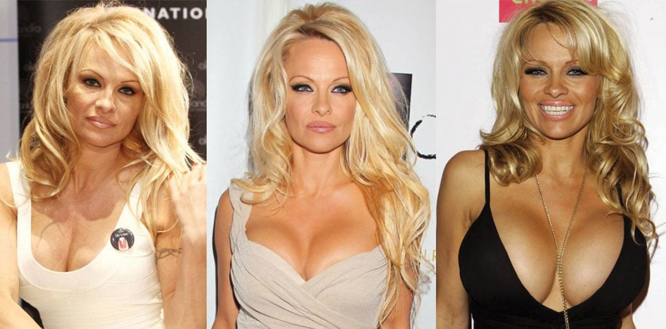 Pamela Anderson Plastic Surgery Before and After 2021