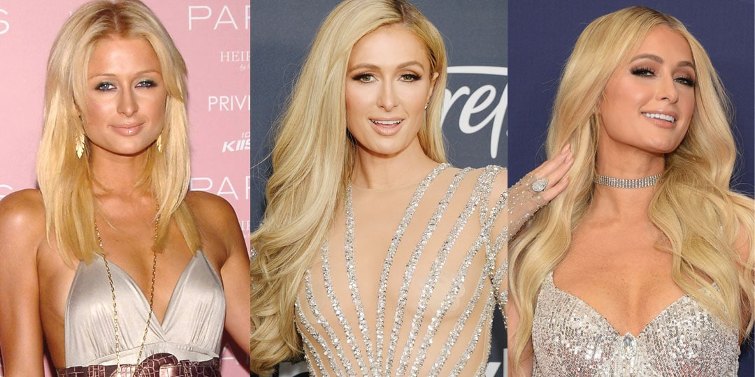 Paris Hilton Plastic Surgery Before and After 2021