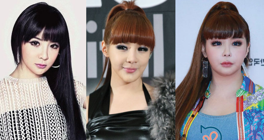 Park Bom Plastic Surgery Before and After 2020