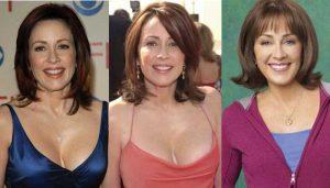 patricia heaton plastic surgery