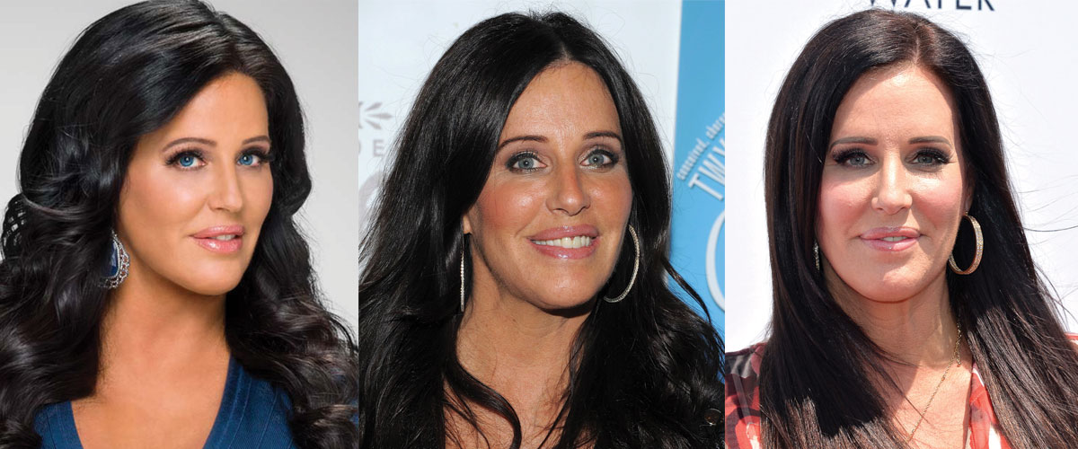 Patti Stanger Plastic Surgery Before and After 2021