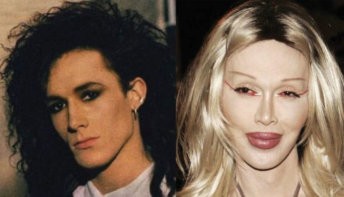 Pete Burns Plastic Surgery Before and After 2021