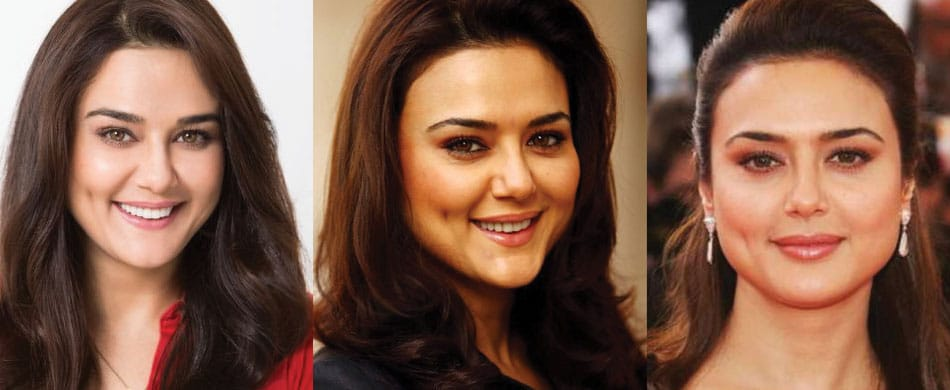 Preity Zinta Plastic Surgery Before and After 2021