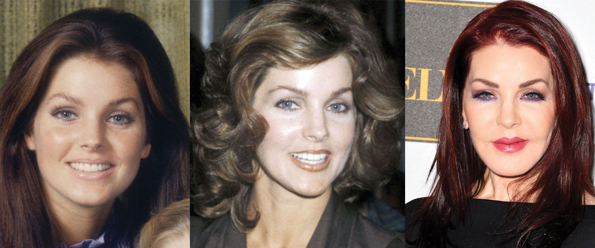 Priscilla Presley Plastic Surgery Before and After 2020