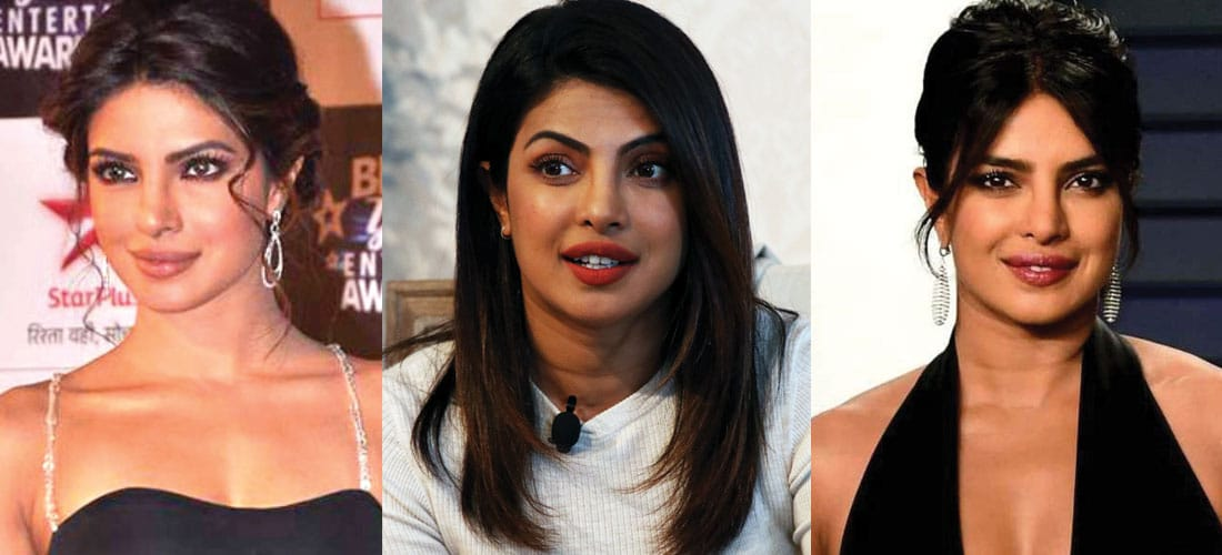 Priyanka Chopra Plastic Surgery Before and After 2020