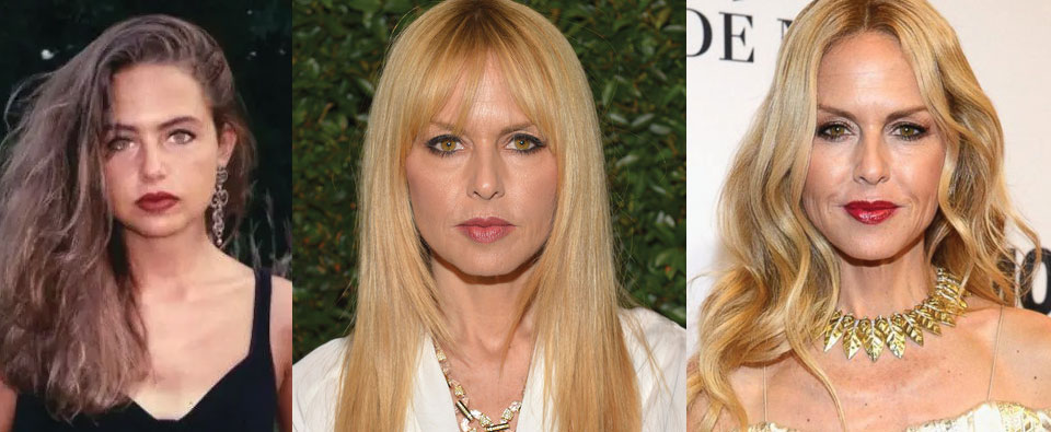 Rachel Zoe Plastic Surgery Before and After 2021