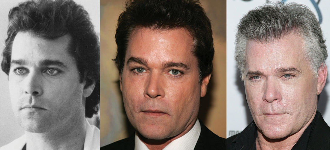 Ray Liotta Plastic Surgery Before and After 2021