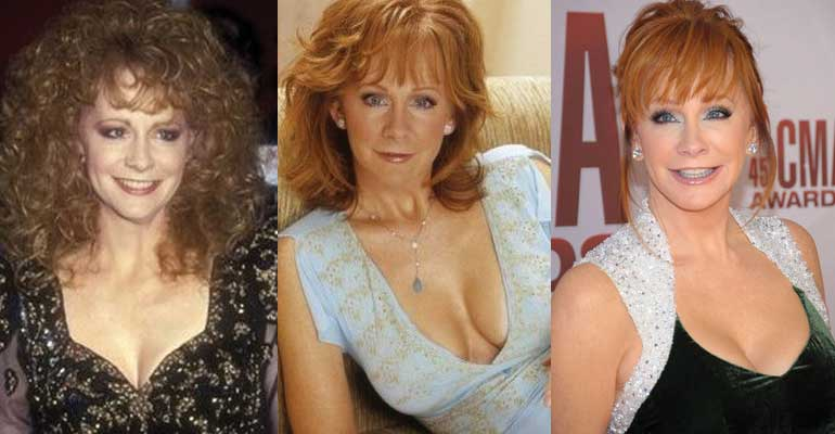 Reba Mcentire Plastic Surgery Before and After 2021