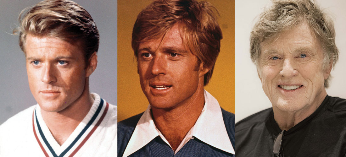 Robert Redford Plastic Surgery Before and After 2021