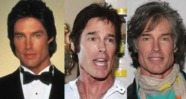Ronn Moss Plastic Surgery Before and After 2019