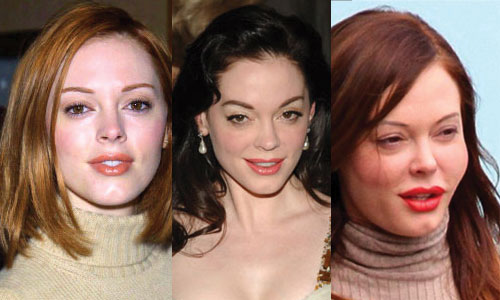 Rose McGowan Plastic Surgery Before and After 2020