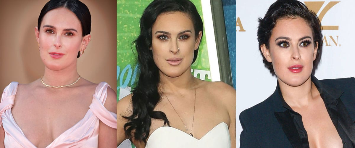 Rumer Willis Plastic Surgery Before and After 2021