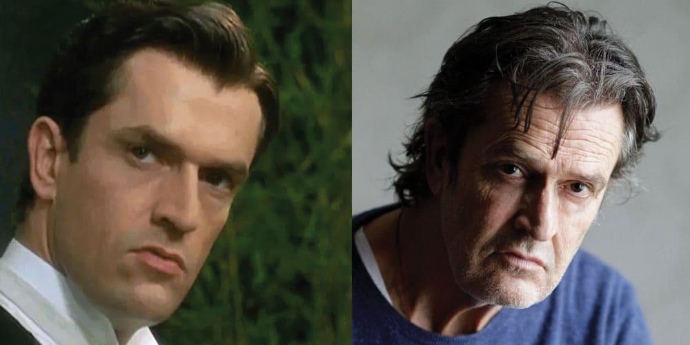 Rupert Everett Plastic Surgery Before and After 2021