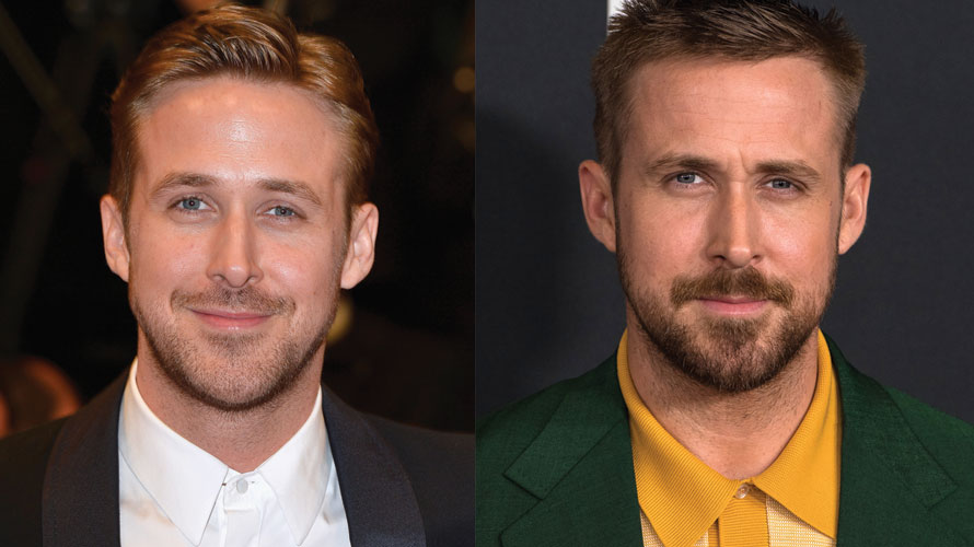Ryan Gosling Plastic Surgery Before and After Pictures 2020