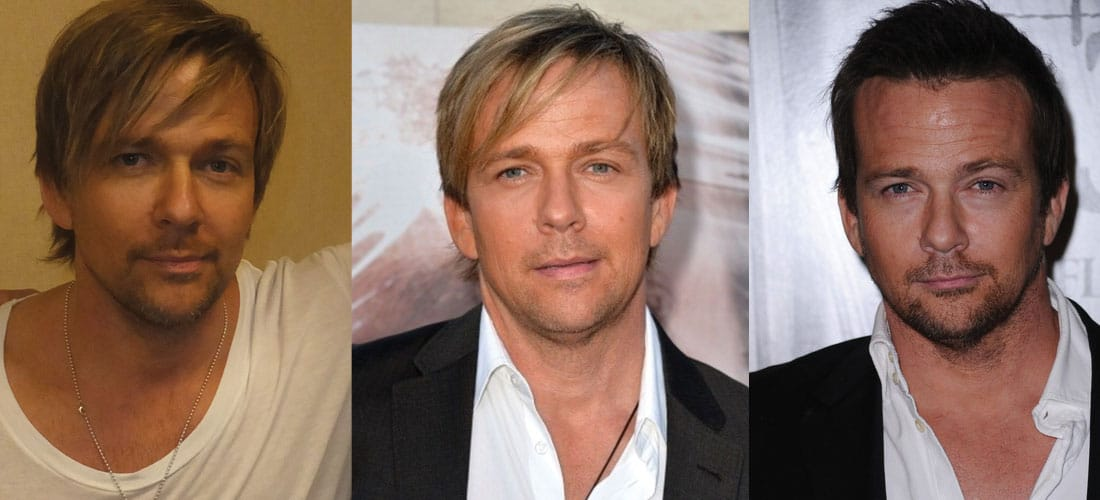 Sean Patrick Flanery Plastic Surgery Before and After 2021