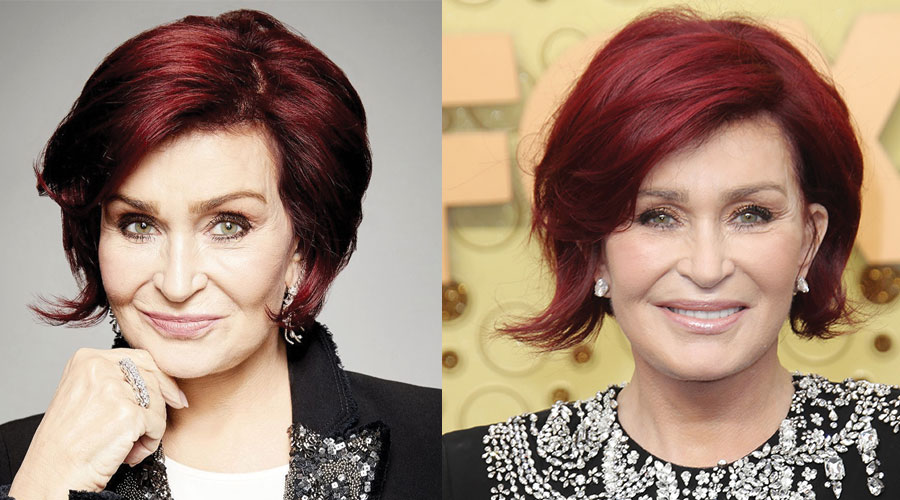 Sharon Osbourne Plastic Surgery Before and After 2020