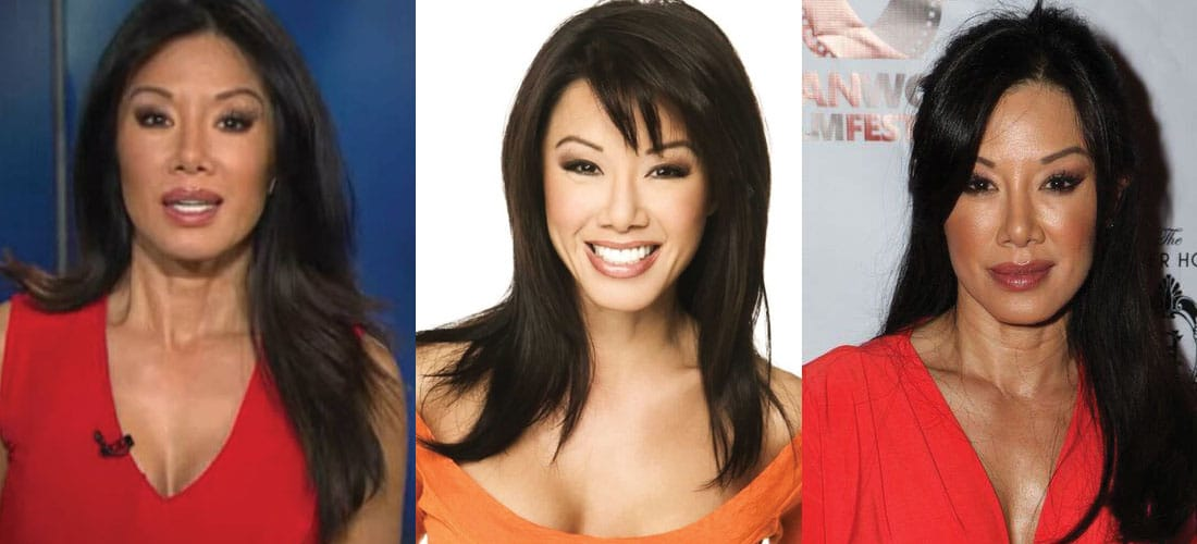 Sharon Tay Plastic Surgery Before and After 2020