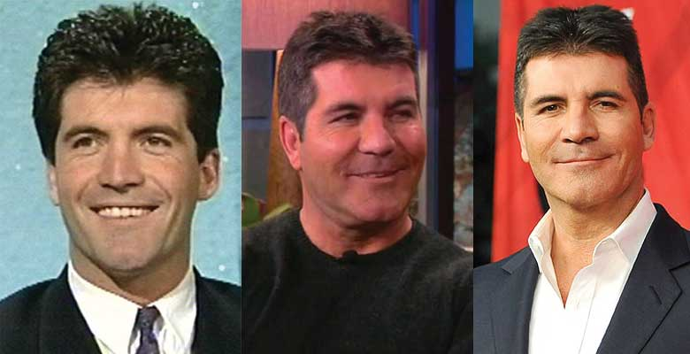 Simon Cowell Plastic Surgery Before and After 2021