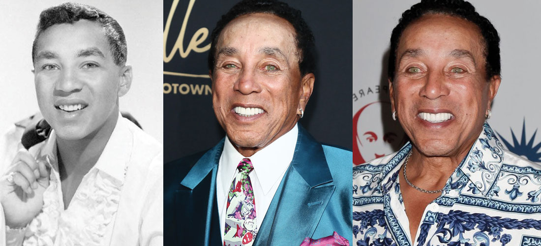 Smokey Robinson Plastic Surgery Before and After 2021