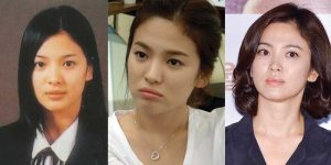 song he kyo plastic surgery