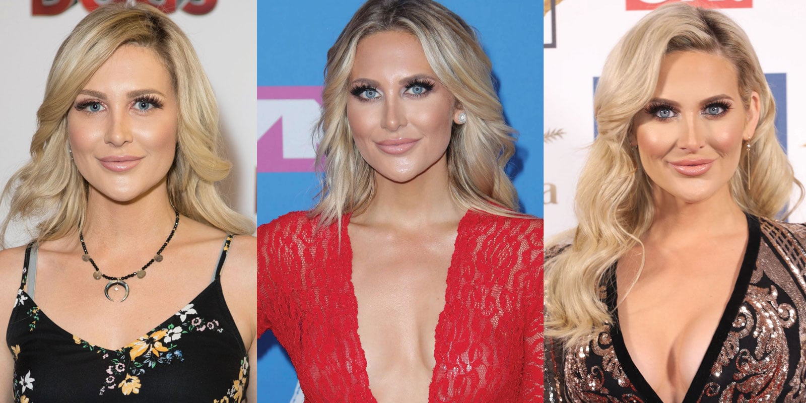 Stephanie Pratt Plastic Surgery Before and After 2021