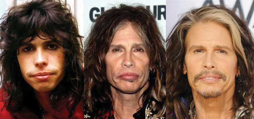 Steven Tyler Plastic Surgery Before and After 2019