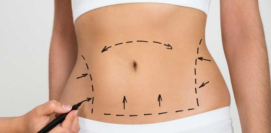 Tummy Tuck Surgery Cost in Usa