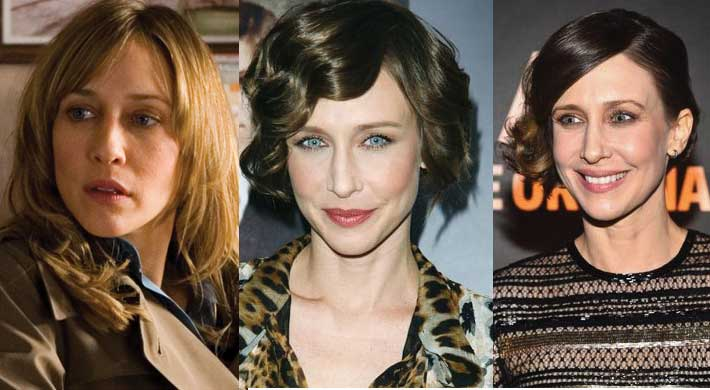 Vera Farmiga Plastic Surgery Before and After 2020