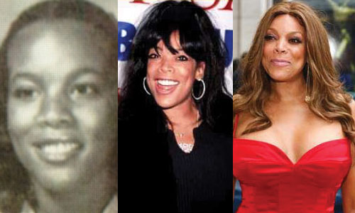 Wendy Williams Plastic Surgery Before and After 2020