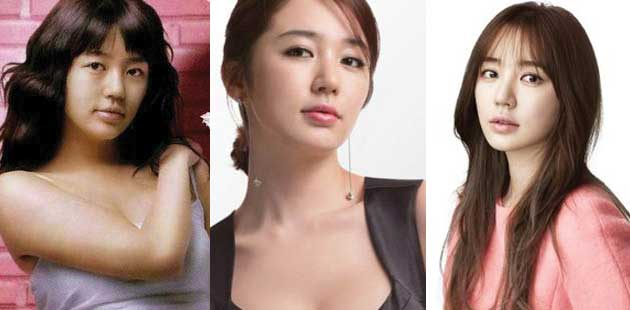 Yoon Eun Hye Plastic Surgery Before and After 2020